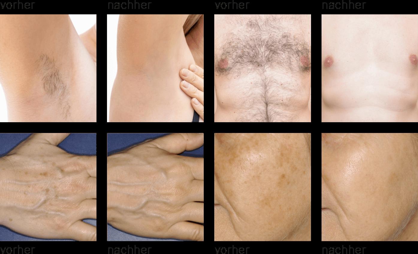Vorher/Nachher: Haarentfernung & Hautverjüngung